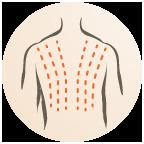 ipl-behandeling1
