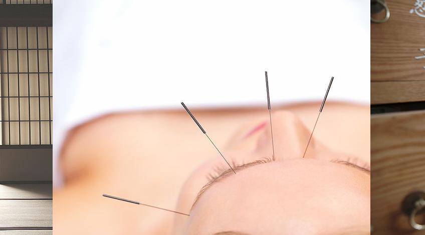 Bijzondere cosmetische acupunctuur